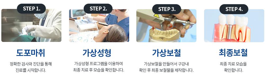 치아성형 시술과정